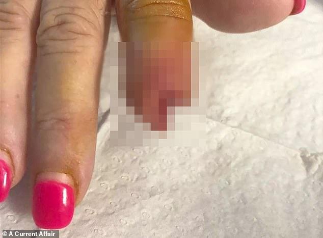 خضعت لعملية جراحية لبتر إصبعها