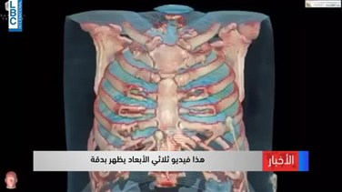 Lebanon News - Virtual reality video shows what Coronavirus can do to your lungs-[VIDEO]